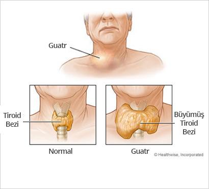 Guatr ve Tiroid anatomoisi